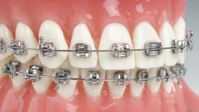 Stały aparat ortodontyczny metalowy, ceramiczny, szafirowy